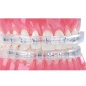 COMFORT COVERS FOR ORTHODONTIC BRACES