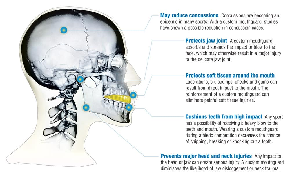 Mouthguard Features